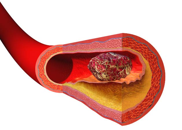 Formation of a blood clot on an arterial plaque - Blausen.com staff (2014). WikiJournal of Medicine 1 (2). DOI:10.15347/wjm/2014.010 - Free use under Creative Commons