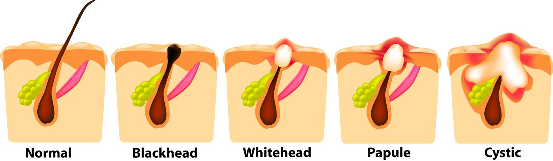Progression of Acne