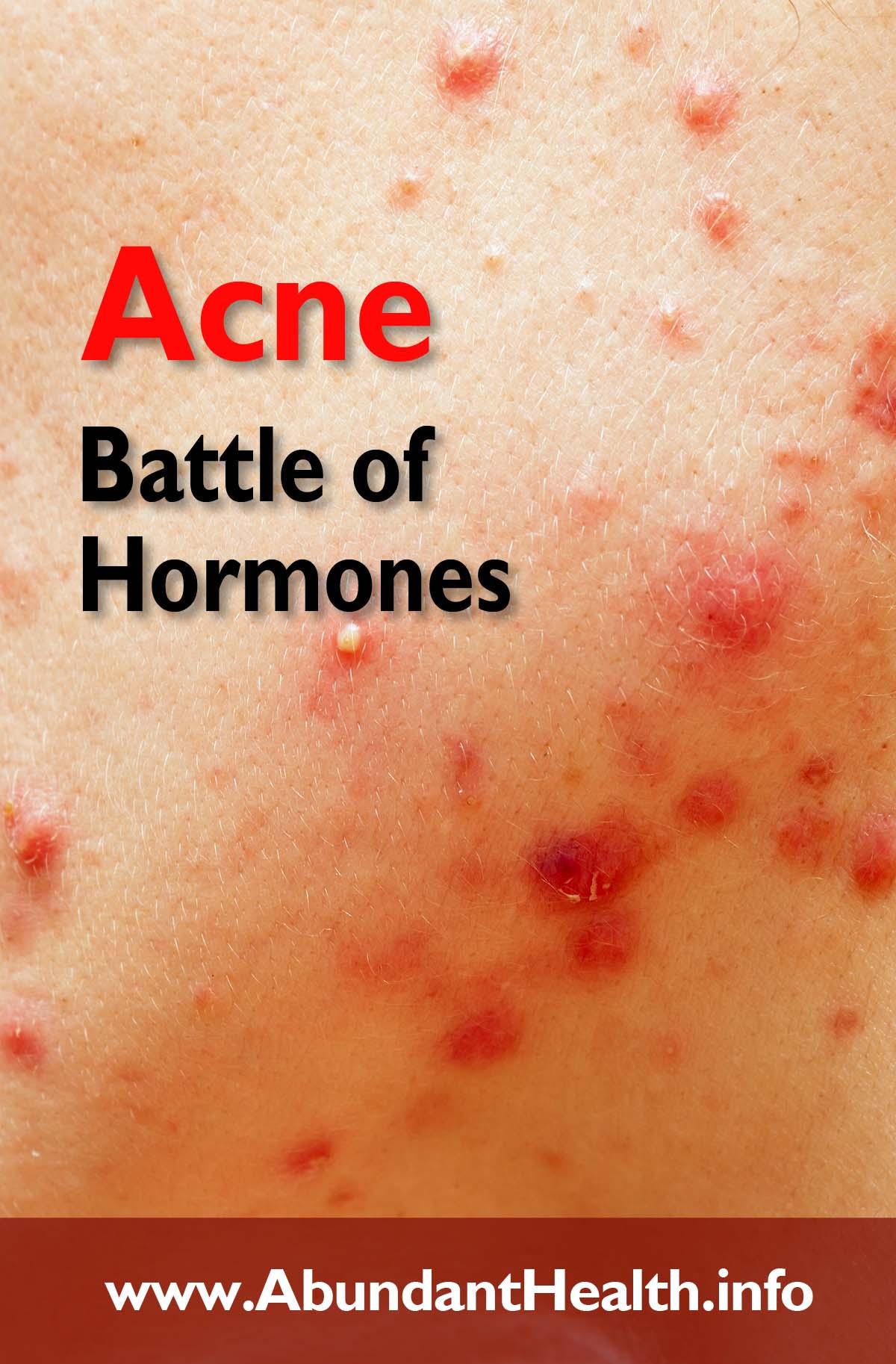 Acne - Battle of Hormones