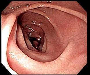 Endoskopie von einem Zwölffingerdarm mit Zöliakieschäden - Foto by Samir from Wikipedia